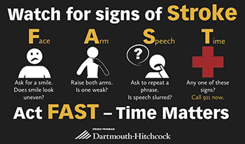 Watch for signs of Stroke. Act FAST - Time Matters.
