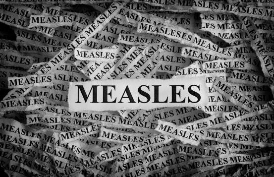 Measles words