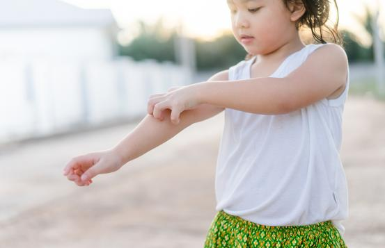 young girl itching her forearm and elbow